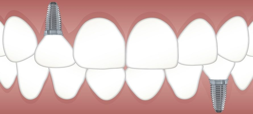 Tips to Ensure the Longevity of Your Dental Implants
