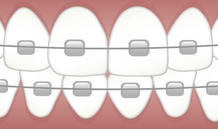 transparent braces metal braces